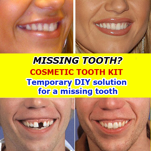 Missing tooth temporary replacement teeth fill gap filler diy twin cosmetic teeth kit solutioingenieria Images